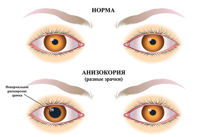 Анизокория (зрачки разного размера)