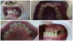 Аномалии зубов: краткая классификация
