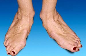 артрит голеностопного сустава симптомы и лечение фото