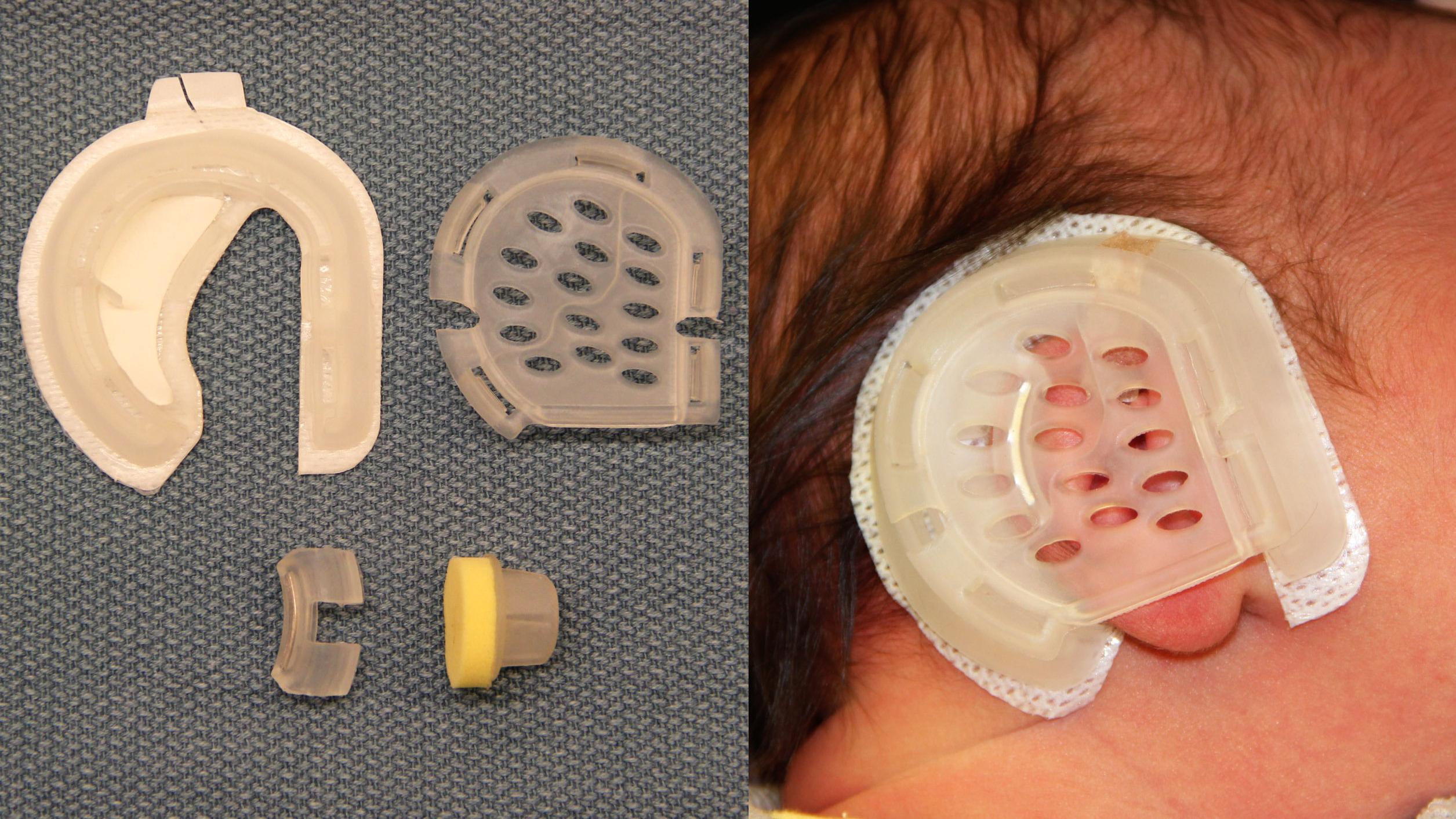 Ушные корректоры для младенцев за несколько месяцев исправят торчащие ушки