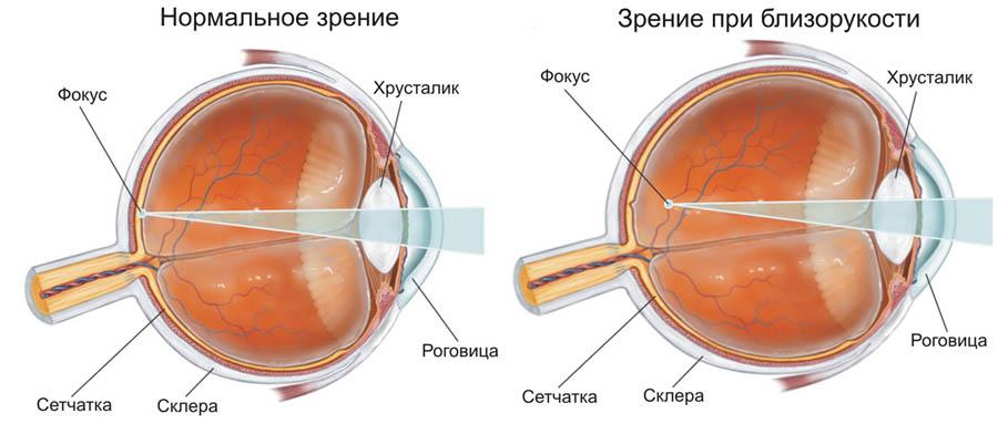 Лечение близорукости у детей и взрослых в Москве