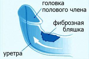 Болезнь Пейрони лечение