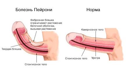 пейрони болезнь у мужчин