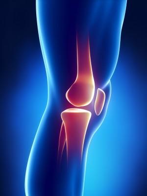 Хондромаляция коленного сустава лечение симптомы причины