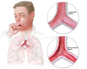 Причины и симптомы бронхита