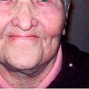 Плоскоклеточный рак кожи после лечения