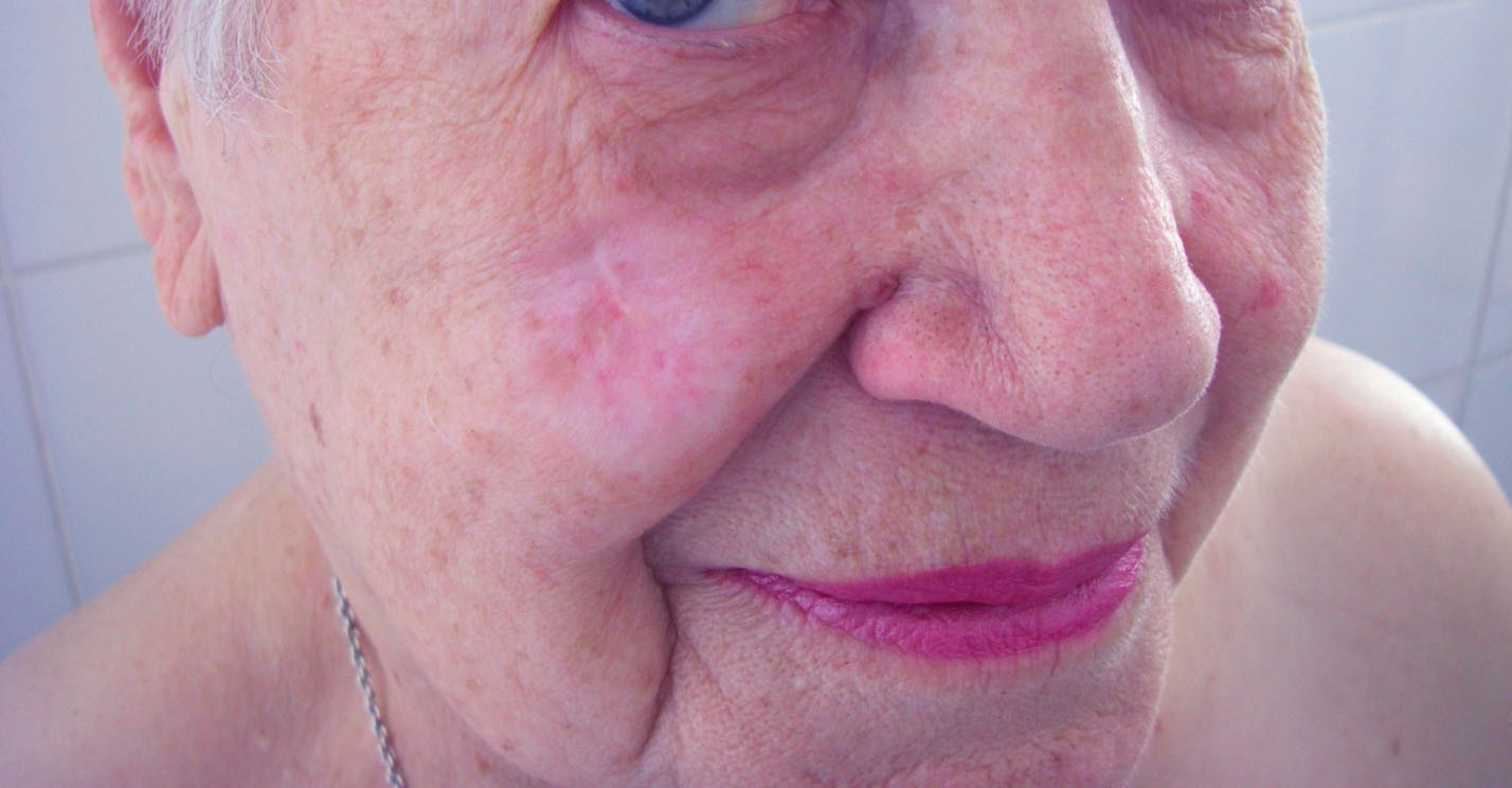 Кератоакантома после лечения