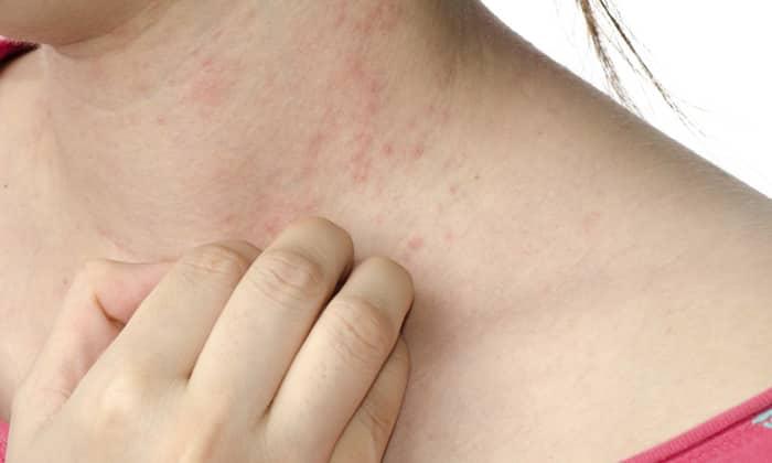 Препарат назначают при упорном кожном зуде