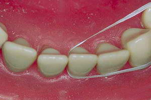 Как правильно чистить зубы зубной нитью?