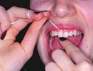 Как правильно чистить зубы флостиком?