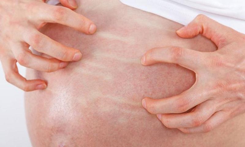 Холестаз у беременных