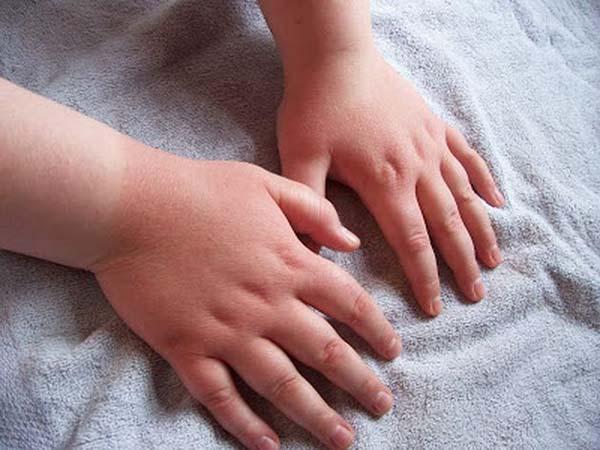 цыпки на руках у ребенка