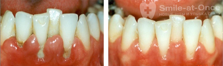 Лечение пародонтоза фото до и после