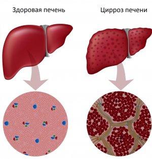 Алкогольная болезнь печени - симптомы и признаки