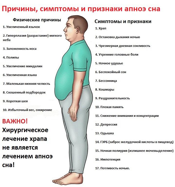 Причины, симптомы и признаки апноэ сна