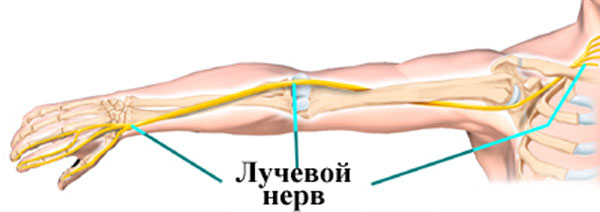 Если поражена нижняя треть плеча или верхняя треть предплечья, то, как правило, плечо и предплечье сохраняют свои двигательные функции. Нарушения возникают исключительно при разгибании кисти руки и пальцев.
