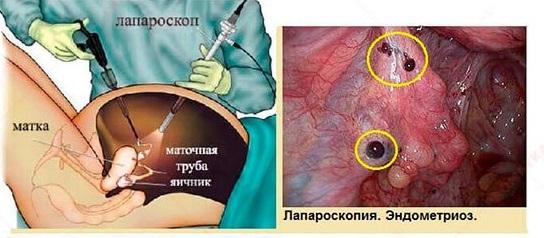 laparoskopiya