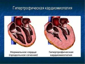 Акромегалия - что это такое, причины, симптомы и лечение
