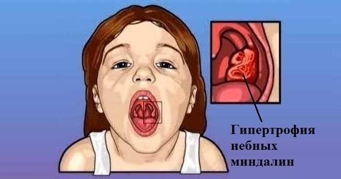 гипертрофия у ребенка