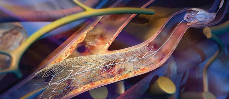 Стеноз сонной артерии: лечение, симптомы, сужение внутренней, правой, классификация
