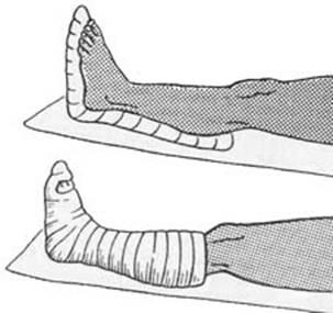 Иммобилизация стопы
