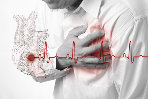 Как определить предынфарктное состояние симптомы