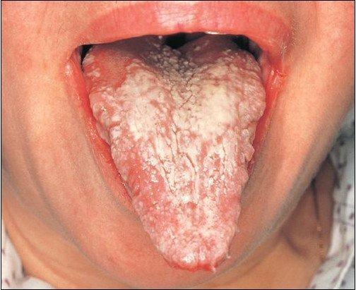 Язвенный стоматит: виды, причины, симптомы и лечение
