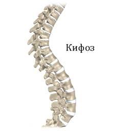 Кифоз – описание, симптомы, лечение
