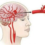Инсульт с кровоизлиянием: последствия и лечение