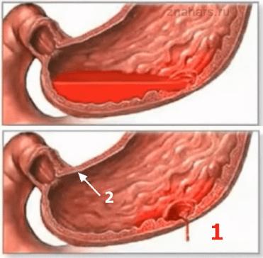 Кровотечение желудка при язвенной болезни