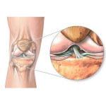 Выявляем и лечим лигаментоз коленного сустава