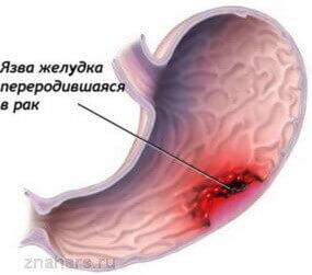 Малигнизация язвы желудка или перерождение злокачественную опухоль