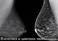 пленочная и цифровая маммография