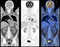 Позитронно-эмиссионная томография (ПЭТ)