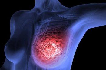 Масталгия молочной железы – симптомы и признаки фото, лечение