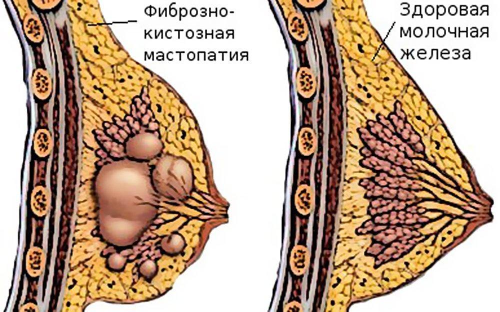 фиброзно кистозная мастопатия после 60 лет