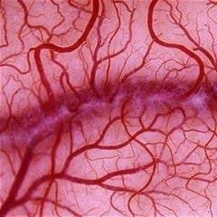 Микроангиопатия головного мозга с наличием очагов