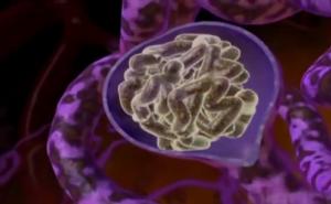 нефросклероз