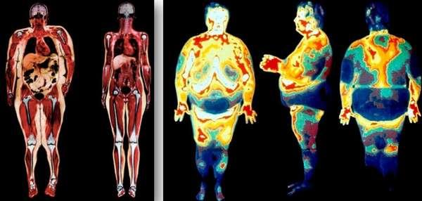 МРТ для выявления висцерального жира