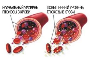 нормальный и повышенный уровень глюкозы в крови