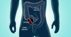Верхнечелюстной синусит симптоматика и лечение