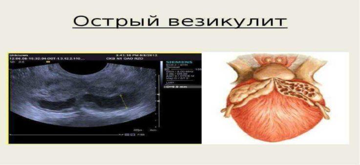 Основные симптомы при везикулите у мужчин