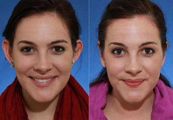 Фото До и После пластики ушей.  Была произведена пластика надхрящницы ушной раковины и мочки уха