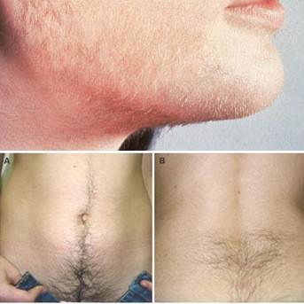 Оволосение по мужскому типу при олигоменорее