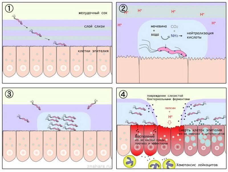 Патогенез язвенной болезни желудка изнутри