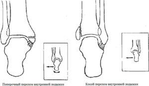 Перелом внутренней лодыжки