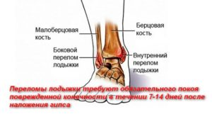 Реабилитация при переломе лодыжки