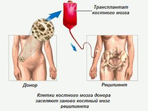 пересадка мозга