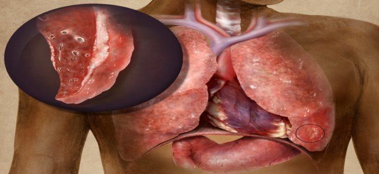 Осложнения спонтанного пневмоторакса