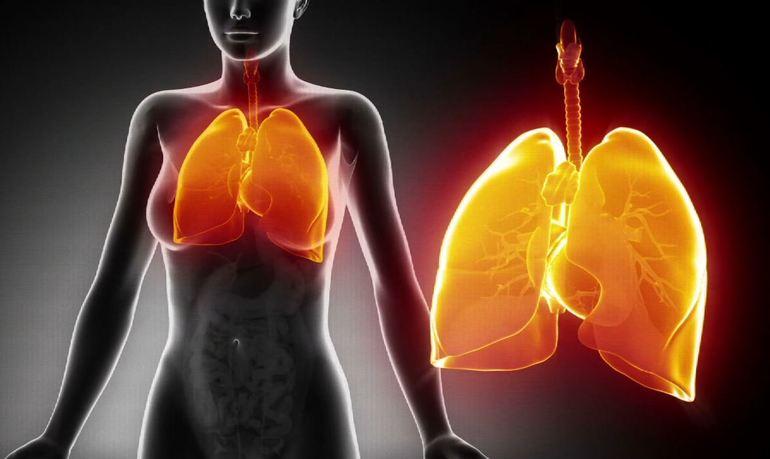 Пневмония легких